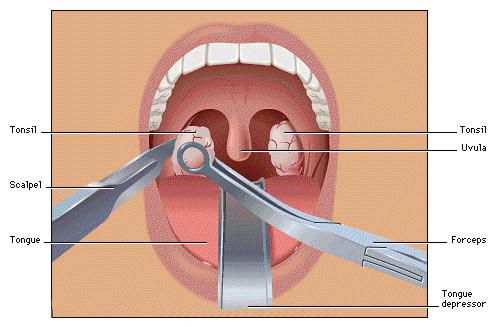 удаление аденоидов запах изо рта